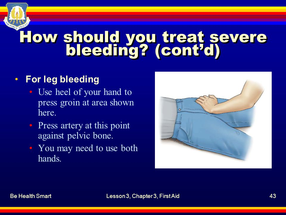 Be Health SmartLesson 3, Chapter 3, First Aid43 How should you treat severe bleeding? (cont'd) For leg bleeding Use heel of your hand to press groin a