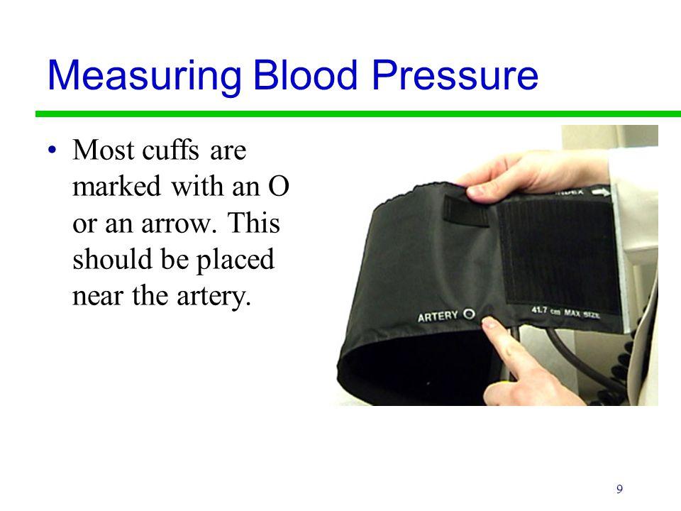 20 Hypotension Hypotension is a subnormal arterial pressure.