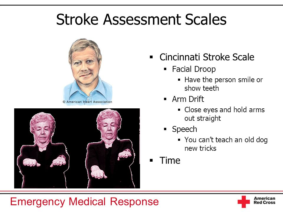 Emergency Medical Response Stroke Assessment Scales  Cincinnati Stroke Scale  Facial Droop  Have the person smile or show teeth  Arm Drift  Close