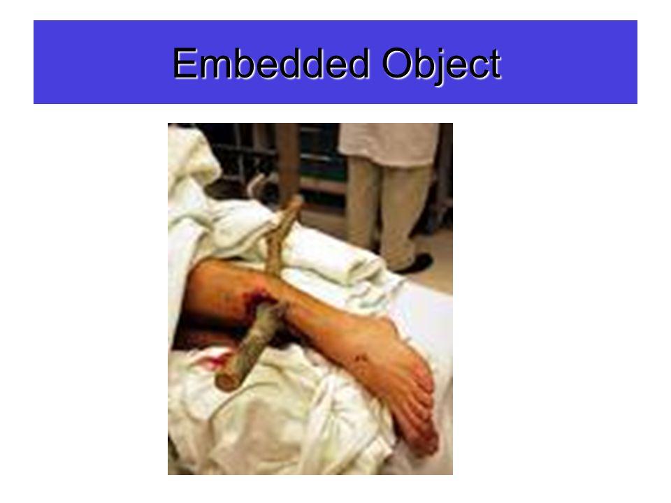Embedded Object
