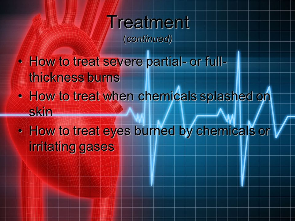 Treatment (continued) How to treat severe partial- or full- thickness burnsHow to treat severe partial- or full- thickness burns How to treat when che