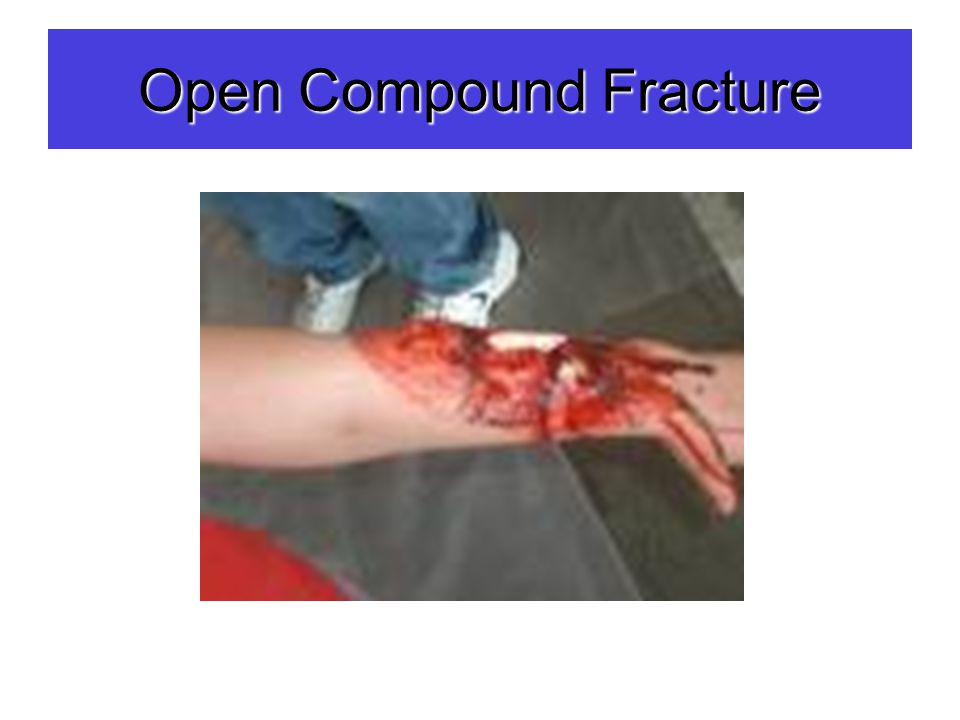 Open Compound Fracture