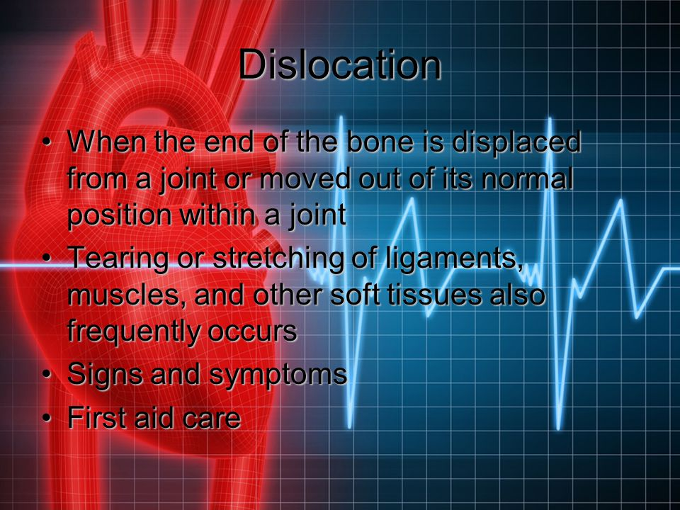 Dislocation When the end of the bone is displaced from a joint or moved out of its normal position within a jointWhen the end of the bone is displaced