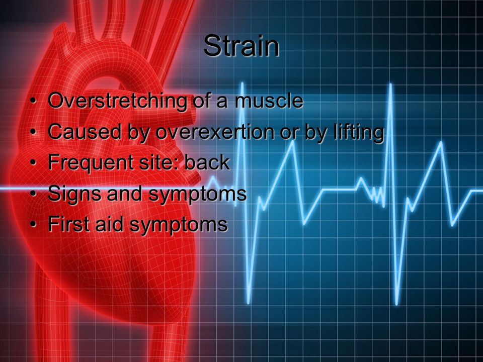 Strain Overstretching of a muscleOverstretching of a muscle Caused by overexertion or by liftingCaused by overexertion or by lifting Frequent site: ba