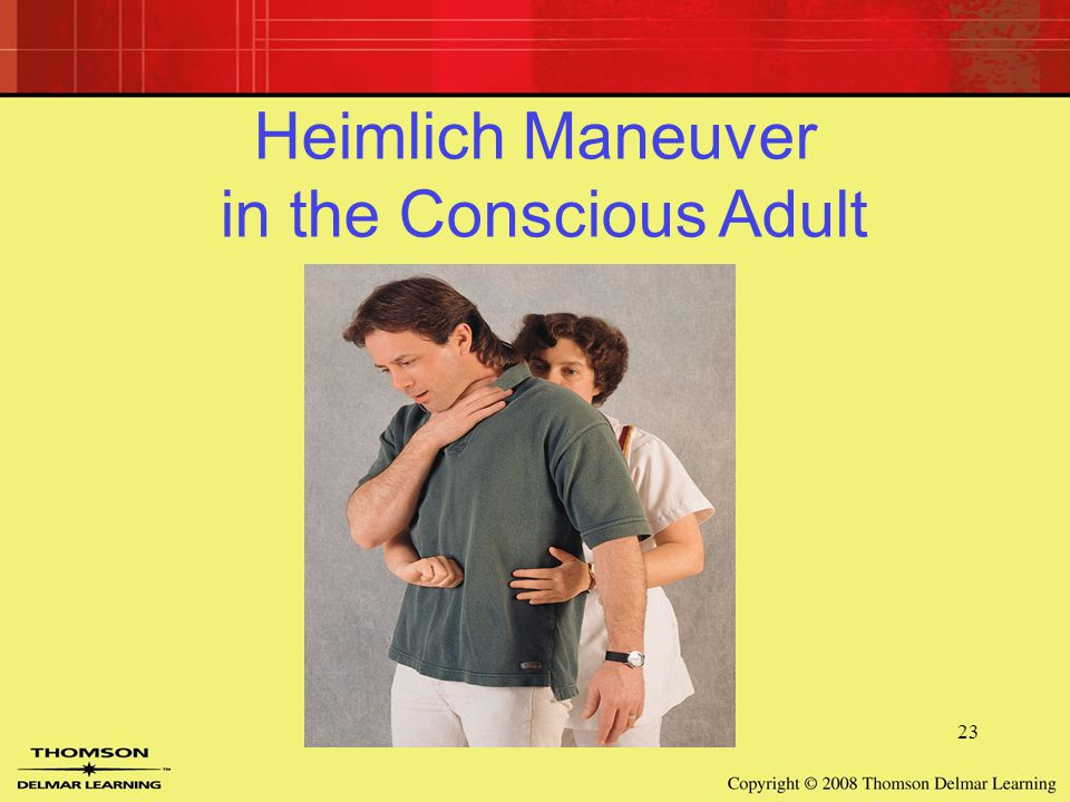 23 Heimlich Maneuver in the Conscious Adult