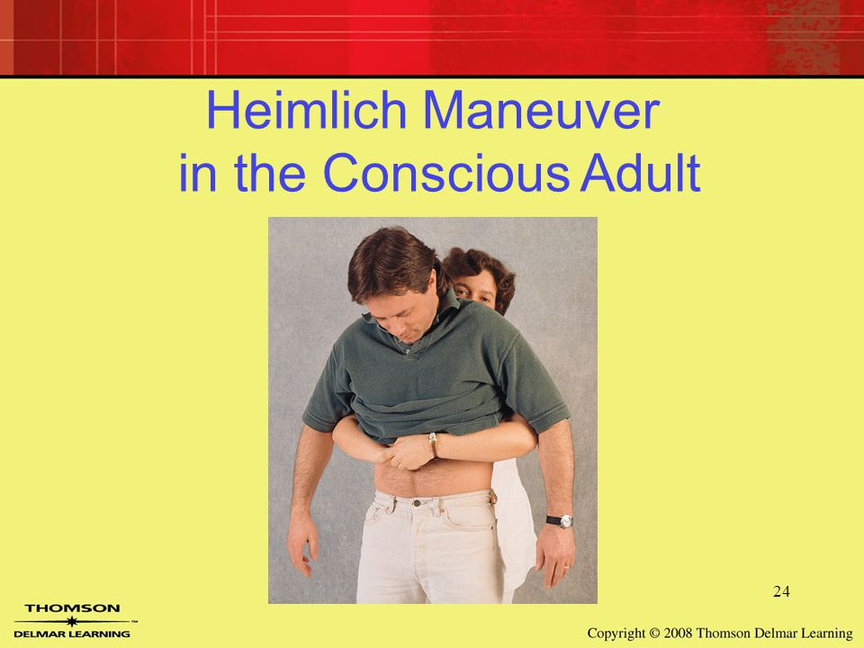 24 Heimlich Maneuver in the Conscious Adult