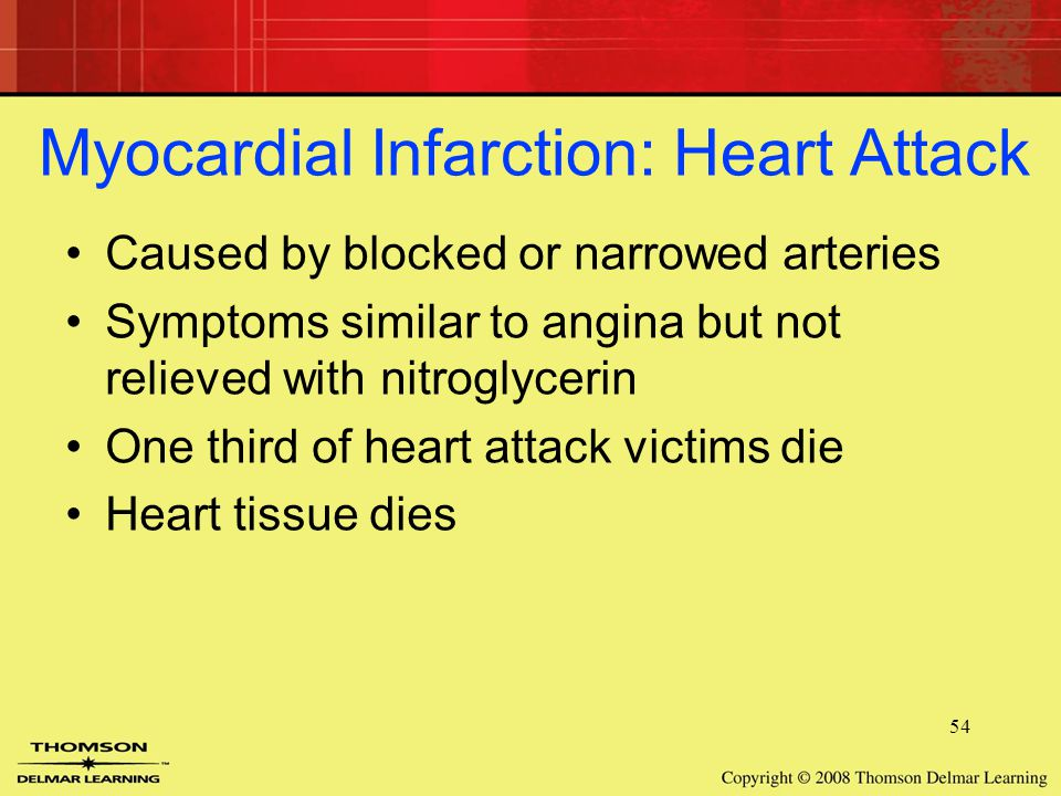 54 Myocardial Infarction: Heart Attack Caused by blocked or narrowed arteries Symptoms similar to angina but not relieved with nitroglycerin One third of heart attack victims die Heart tissue dies