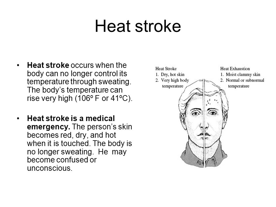 Heat stroke Heat stroke occurs when the body can no longer control its temperature through sweating.