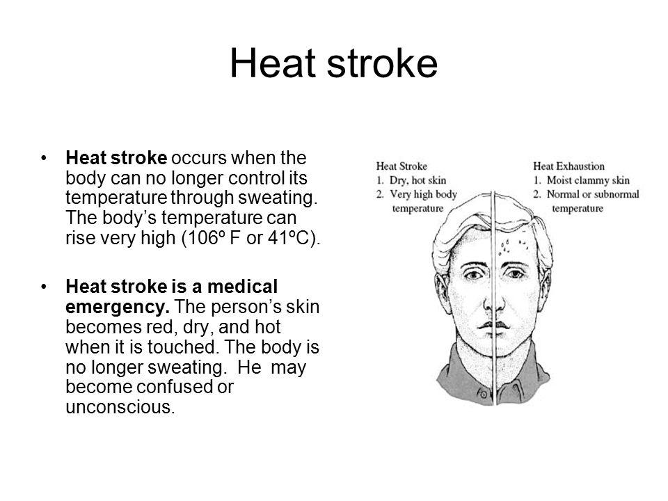 Heat stroke Heat stroke occurs when the body can no longer control its temperature through sweating. The body's temperature can rise very high (106º F