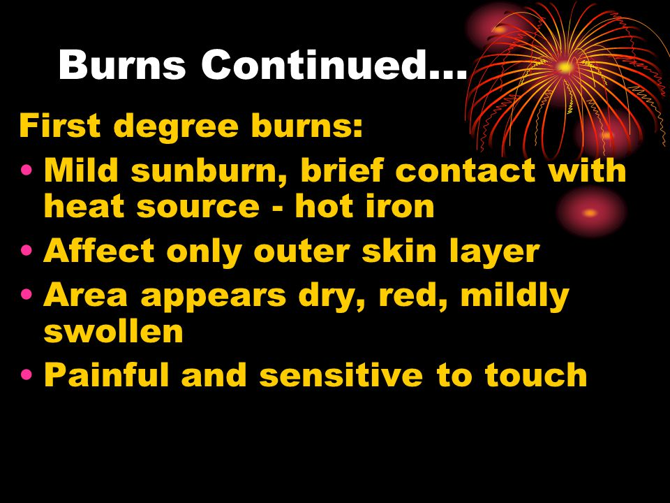 Burns Continued… First degree burns: Mild sunburn, brief contact with heat source - hot iron Affect only outer skin layer Area appears dry, red, mildly swollen Painful and sensitive to touch