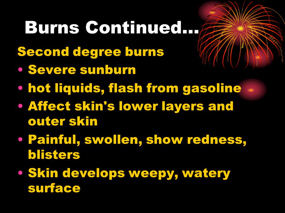 Burns Continued… Second degree burns Severe sunburn hot liquids, flash from gasoline Affect skin s lower layers and outer skin Painful, swollen, show redness, blisters Skin develops weepy, watery surface
