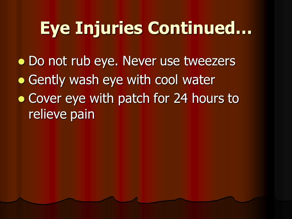 Eye Injuries Continued… Do not rub eye. Never use tweezers Do not rub eye.