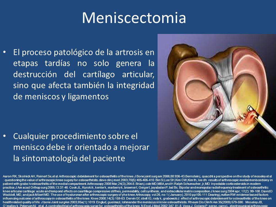 Meniscectomia El proceso patológico de la artrosis en etapas tardías no solo genera la destrucción del cartílago articular, sino que afecta también la integridad de meniscos y ligamentos Cualquier procedimiento sobre el menisco debe ir orientado a mejorar la sintomatología del paciente Aaron RK, Skolnick AH, Reinert Se,et al.Arthroscopic debridement for osteoarthritis of the knee.J Bone joint surg am 2006;88:936-43.Bernstein j, quaccht a perspective on the study of moseley et al : questioning the value of arthroscopic knee sugery for osteoarthristis.cleve clin j med.2003;70(5):405-406-410.