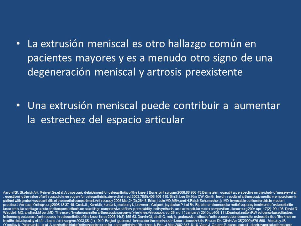 La extrusión meniscal es otro hallazgo común en pacientes mayores y es a menudo otro signo de una degeneración meniscal y artrosis preexistente Una ex