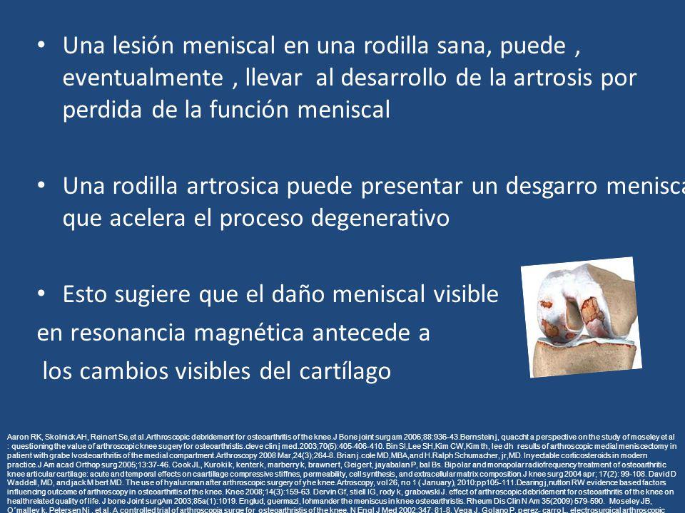 Una lesión meniscal en una rodilla sana, puede, eventualmente, llevar al desarrollo de la artrosis por perdida de la función meniscal Una rodilla artrosica puede presentar un desgarro meniscal que acelera el proceso degenerativo Esto sugiere que el daño meniscal visible en resonancia magnética antecede a los cambios visibles del cartílago Aaron RK, Skolnick AH, Reinert Se,et al.Arthroscopic debridement for osteoarthritis of the knee.J Bone joint surg am 2006;88:936-43.Bernstein j, quaccht a perspective on the study of moseley et al : questioning the value of arthroscopic knee sugery for osteoarthristis.cleve clin j med.2003;70(5):405-406-410.