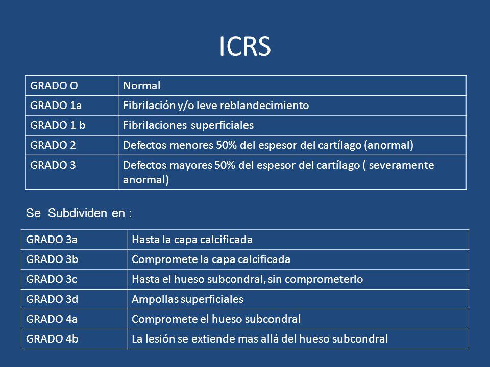 ICRS GRADO ONormal GRADO 1aFibrilación y/o leve reblandecimiento GRADO 1 bFibrilaciones superficiales GRADO 2Defectos menores 50% del espesor del cart