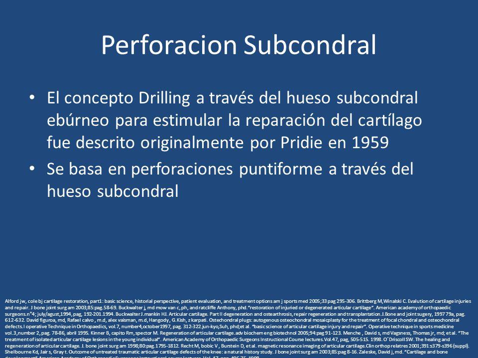 Perforacion Subcondral El concepto Drilling a través del hueso subcondral ebúrneo para estimular la reparación del cartílago fue descrito originalment