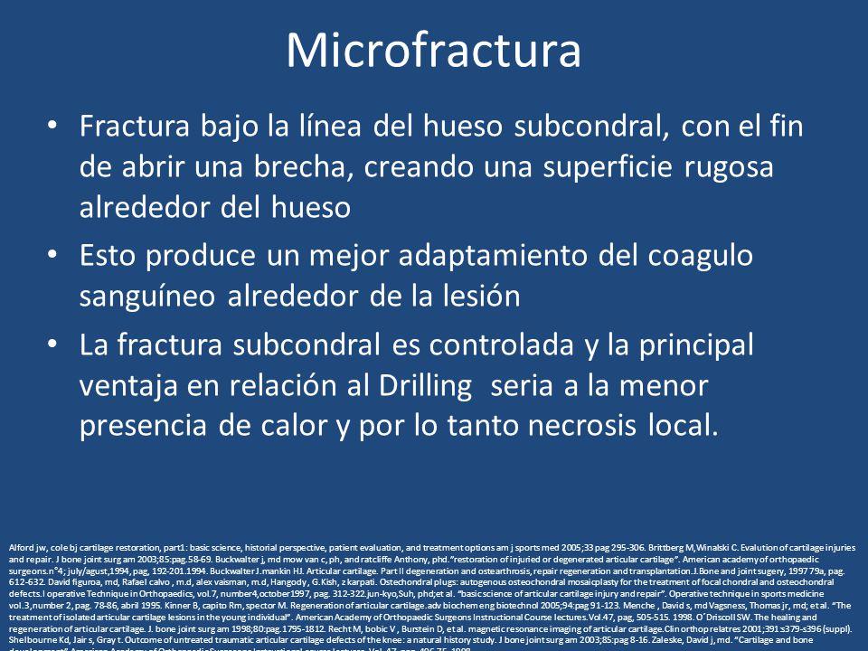 Microfractura Fractura bajo la línea del hueso subcondral, con el fin de abrir una brecha, creando una superficie rugosa alrededor del hueso Esto prod