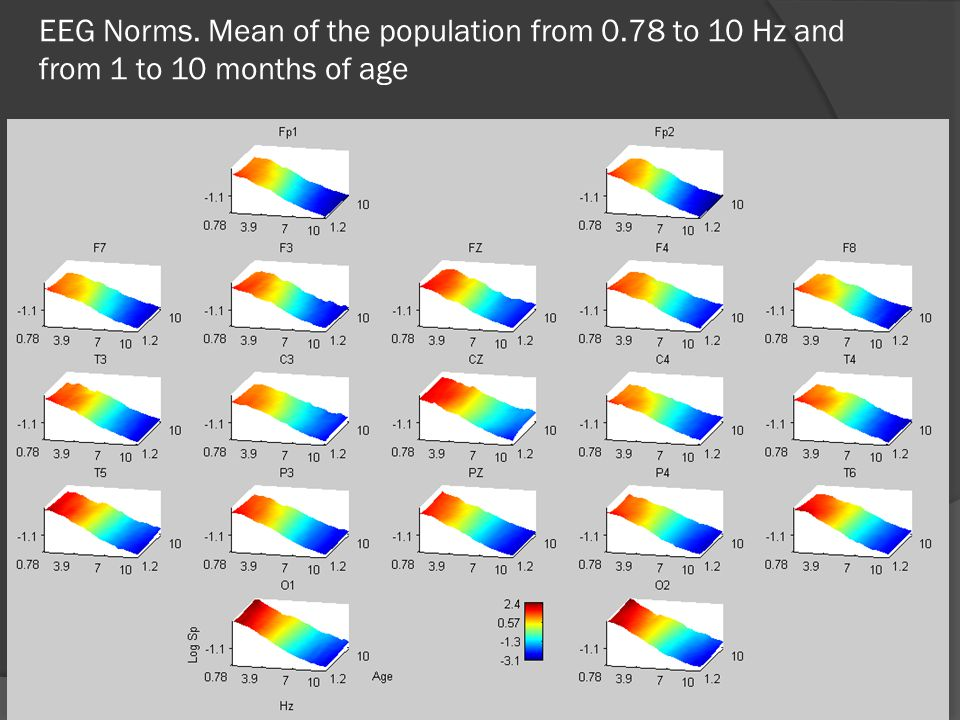 EEG Norms. Mean of the population from 0.78 to 10 Hz and from 1 to 10 months of age