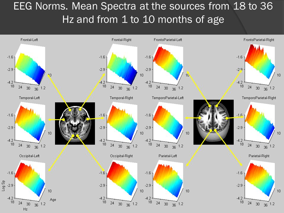 EEG Norms. Mean Spectra at the sources from 18 to 36 Hz and from 1 to 10 months of age