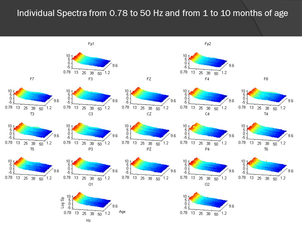 EEG Norms. Mean Spectra at the sources from 0.78 to 10 Hz and from 1 to 10 months of age