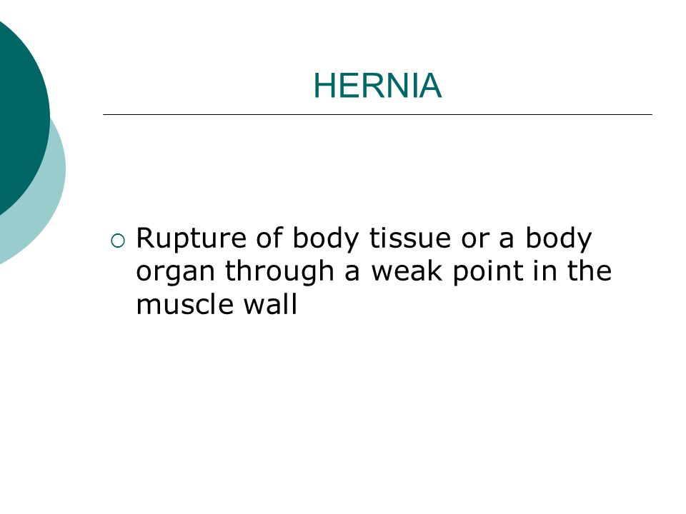 HERNIA  Rupture of body tissue or a body organ through a weak point in the muscle wall