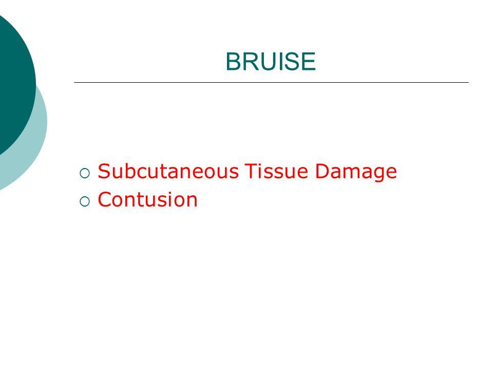 BRUISE  Subcutaneous Tissue Damage  Contusion