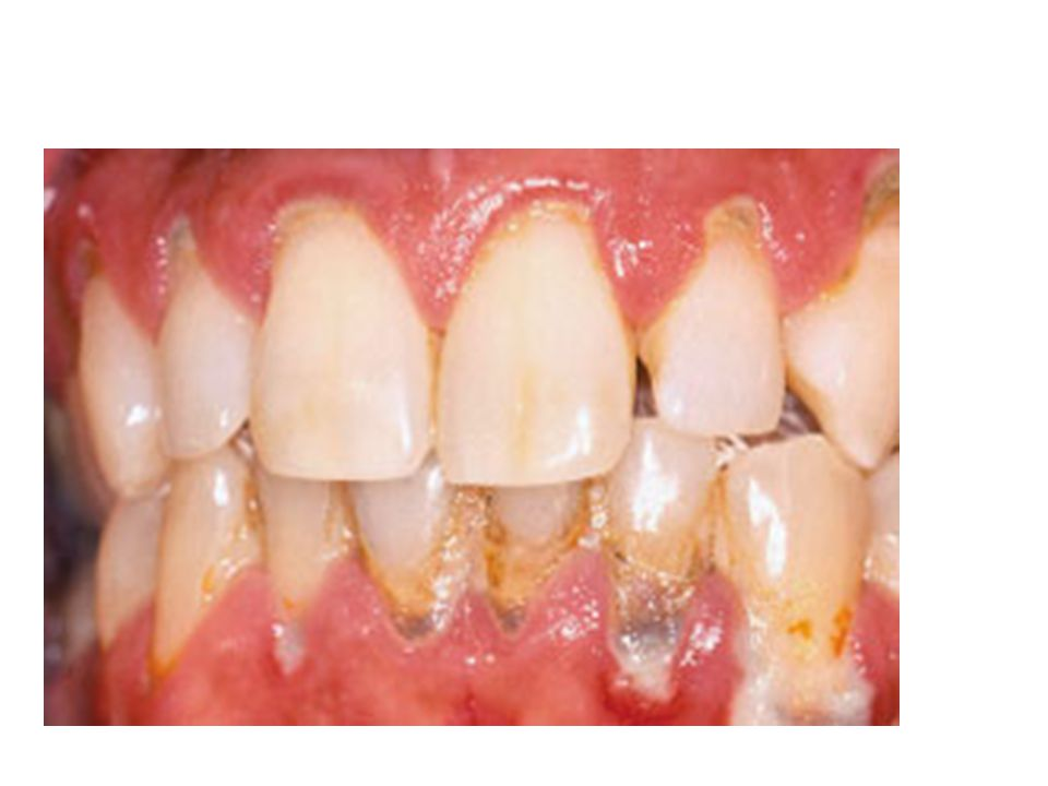 Figure 4. Moderately severe periodontitis.