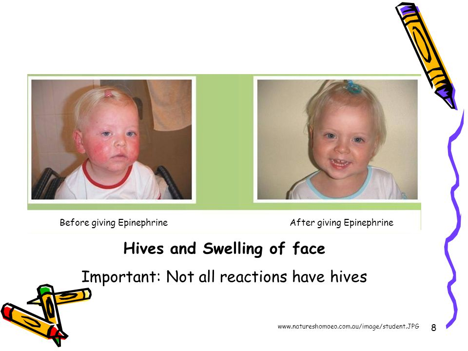 8 Hives and Swelling of face Important: Not all reactions have hives Before giving EpinephrineAfter giving Epinephrine www.natureshomoeo.com.au/image/student.JPG
