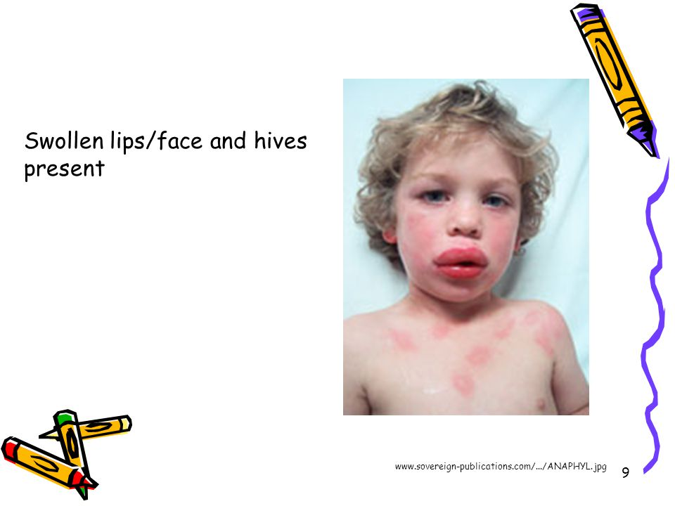 9 Swollen lips/face and hives present www.sovereign-publications.com/.../ANAPHYL.jpg