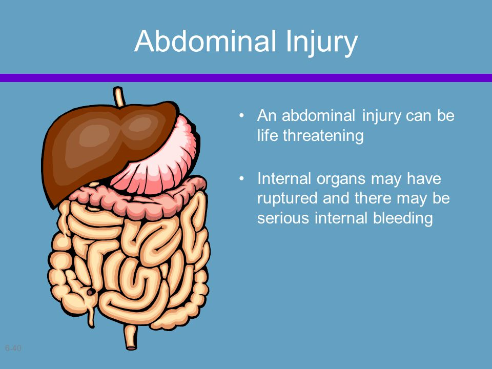 6-40 Abdominal Injury An abdominal injury can be life threatening Internal organs may have ruptured and there may be serious internal bleeding