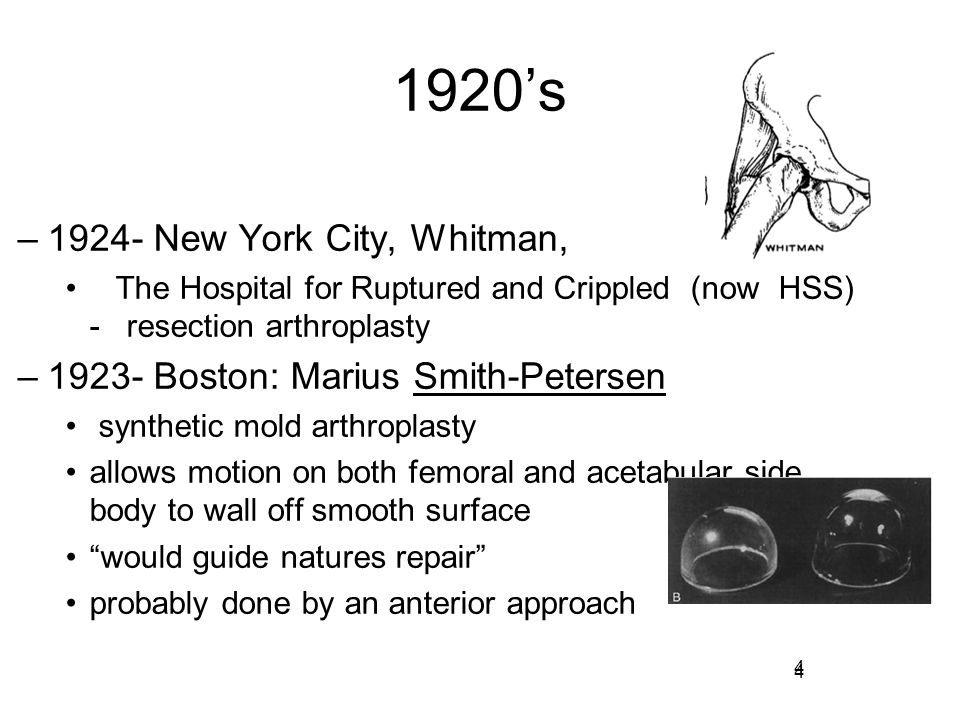 4 1920's –1924- New York City, Whitman, The Hospital for Ruptured and Crippled (now HSS) - resection arthroplasty –1923- Boston: Marius Smith-Petersen
