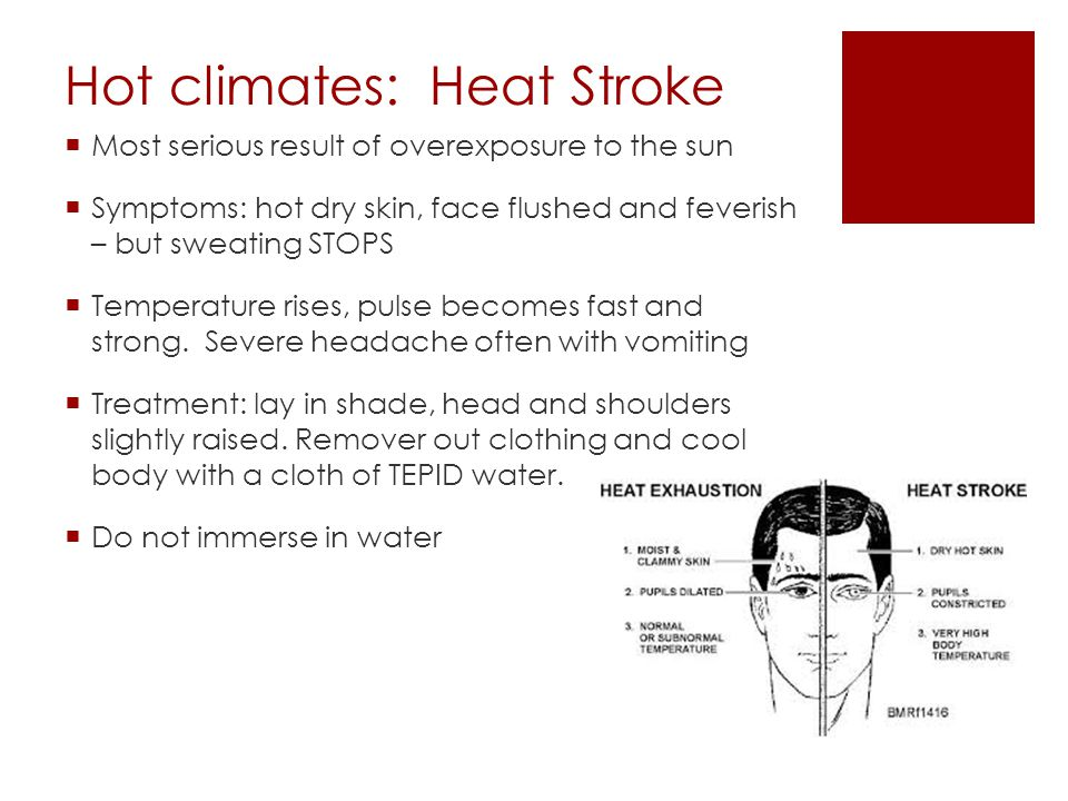 Hot climates: Heat Stroke  Most serious result of overexposure to the sun  Symptoms: hot dry skin, face flushed and feverish – but sweating STOPS  Temperature rises, pulse becomes fast and strong.