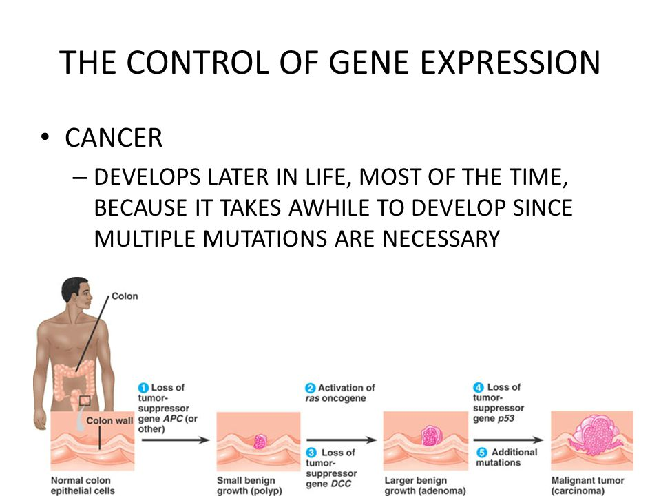 THE CONTROL OF GENE EXPRESSION CANCER – DEVELOPS LATER IN LIFE, MOST OF THE TIME, BECAUSE IT TAKES AWHILE TO DEVELOP SINCE MULTIPLE MUTATIONS ARE NECESSARY