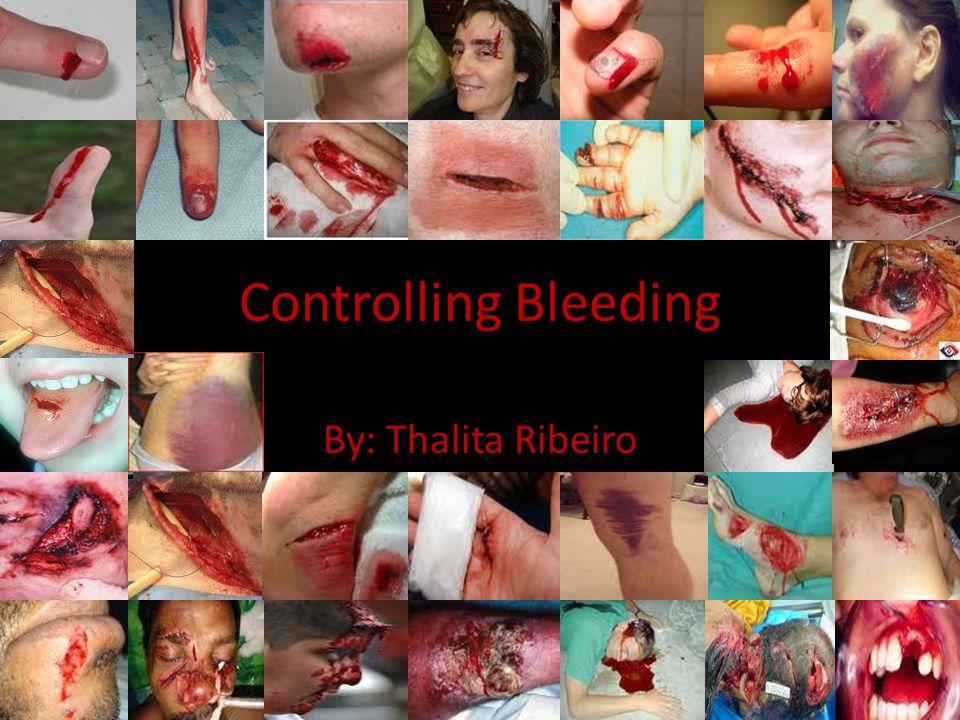 Controlling Bleeding By: Thalita Ribeiro