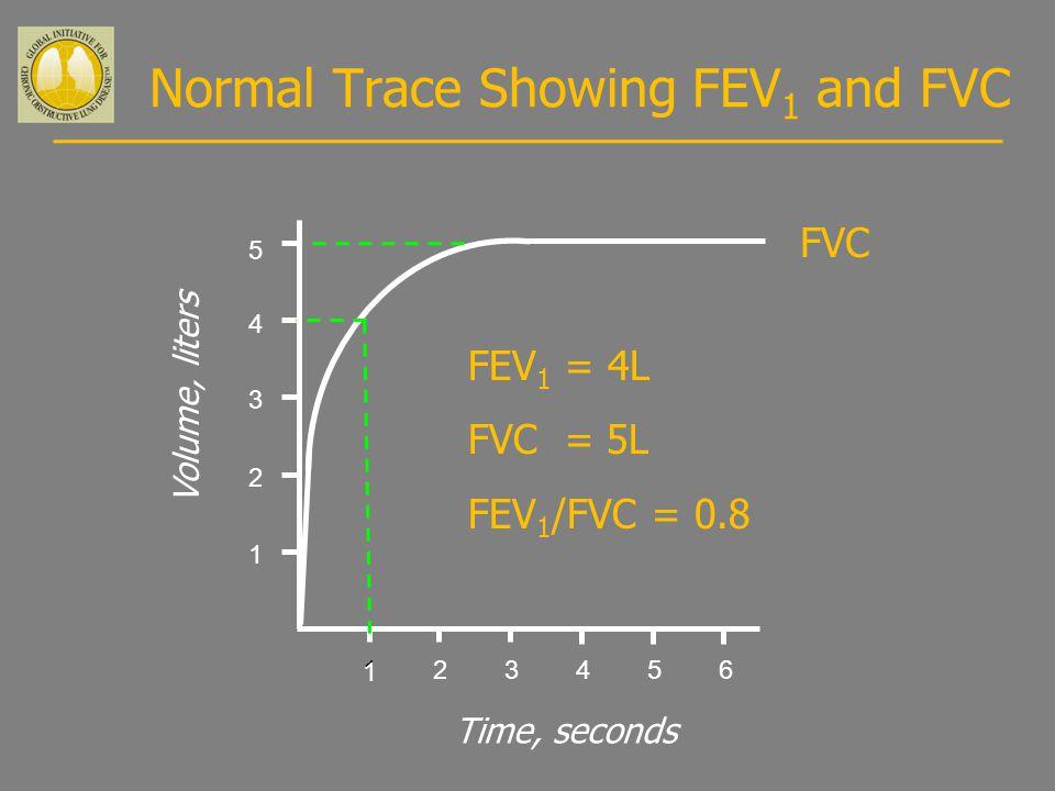 Normal Trace Showing FEV 1 and FVC 123456 1 2 3 4 Volume, liters Time, seconds FVC 5 1 FEV 1 = 4L FVC = 5L FEV 1 /FVC = 0.8