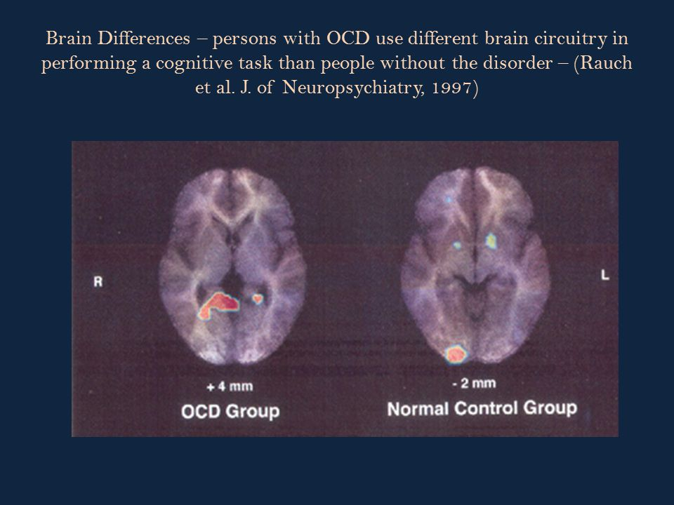 Brain Differences – persons with OCD use different brain circuitry in performing a cognitive task than people without the disorder – (Rauch et al.