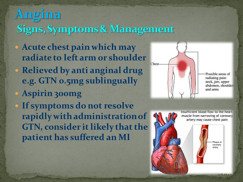 Acute chest pain which may radiate to left arm or shoulder Relieved by anti anginal drug e.g.