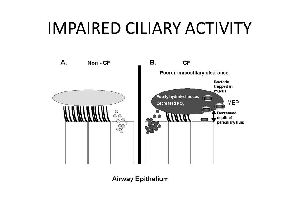 IMPAIRED CILIARY ACTIVITY