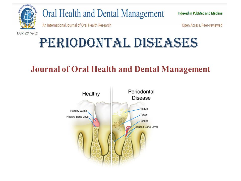 PEriodontal Diseases Journal of Oral Health and Dental Management