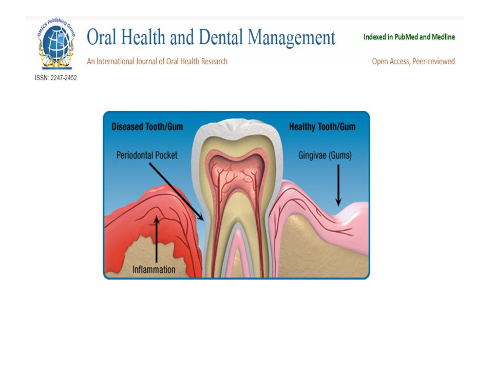 Types of Periodontal Diseases Gingivitis: Gingivitis refers to inflammation of the gum of any cause.