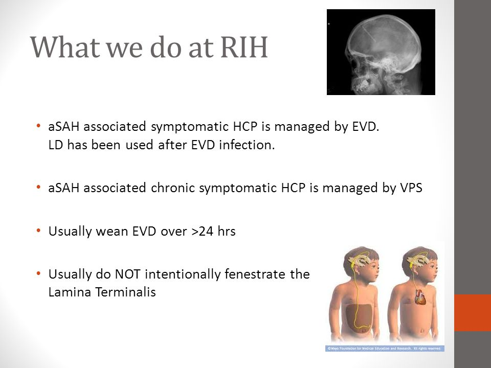 What we do at RIH aSAH associated symptomatic HCP is managed by EVD. LD has been used after EVD infection. aSAH associated chronic symptomatic HCP is