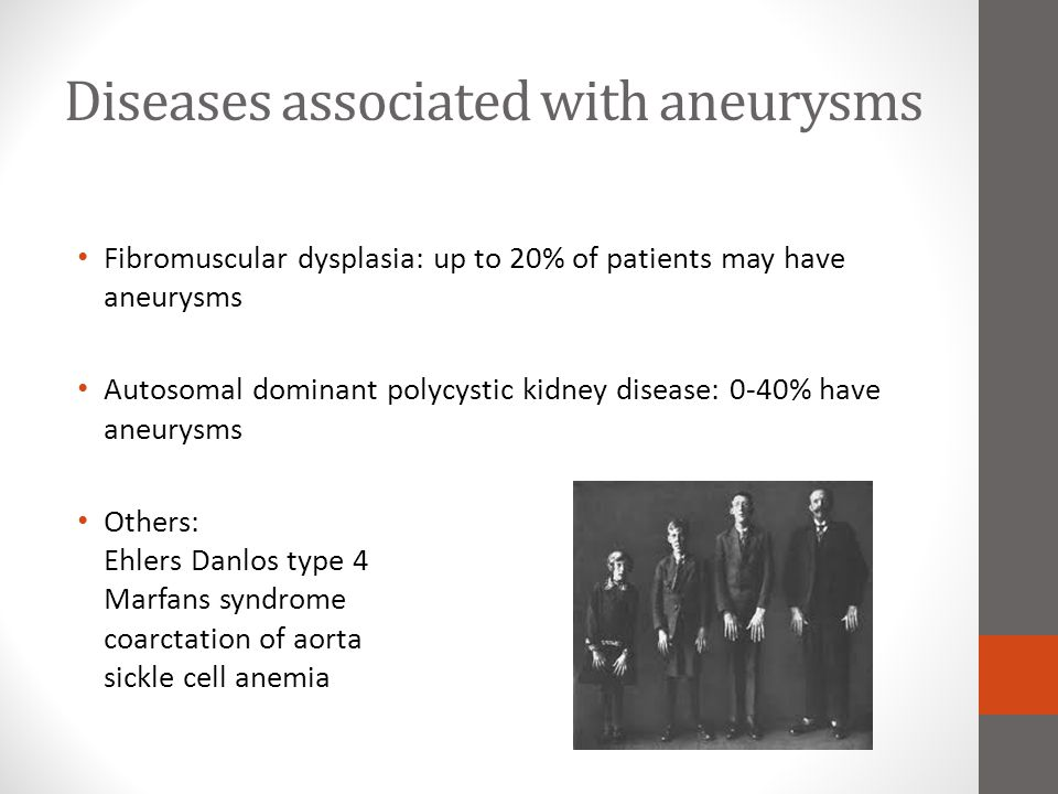 Diseases associated with aneurysms Fibromuscular dysplasia: up to 20% of patients may have aneurysms Autosomal dominant polycystic kidney disease: 0-4