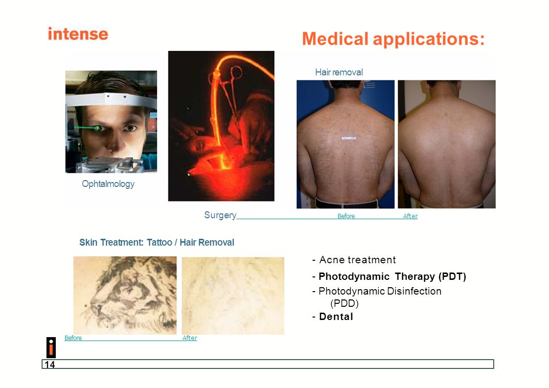 14 Medical applications: Surgery BeforeAfter Skin Treatment: Tattoo / Hair Removal - Acne treatment - Photodynamic Therapy (PDT) - Photodynamic Disinf