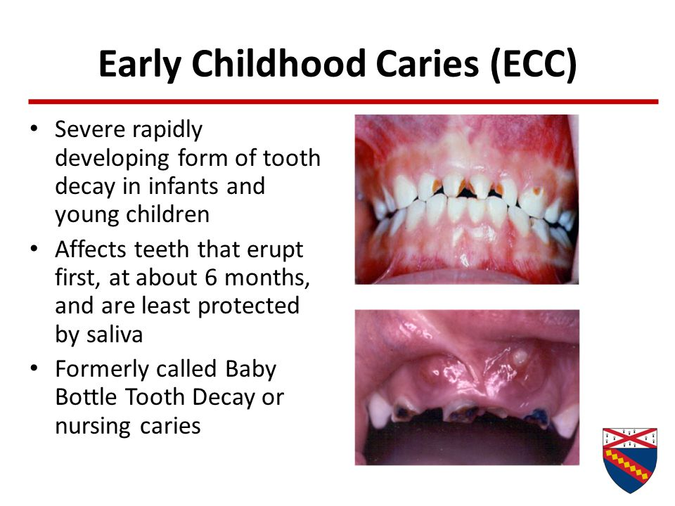 Early Childhood Caries (ECC) Severe rapidly developing form of tooth decay in infants and young children Affects teeth that erupt first, at about 6 mo