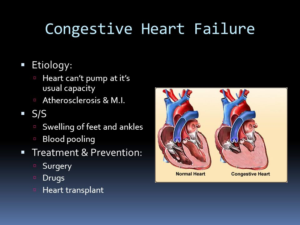 Congestive Heart Failure  Etiology:  Heart can't pump at it's usual capacity  Atherosclerosis & M.I.