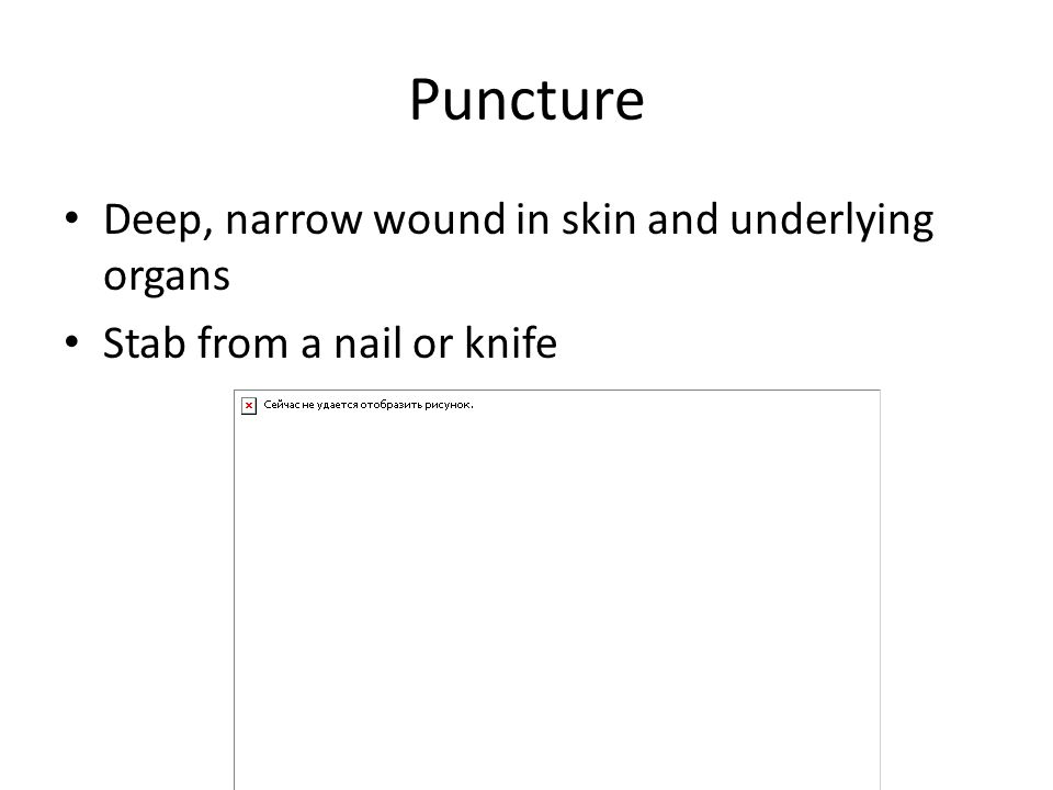 Puncture Deep, narrow wound in skin and underlying organs Stab from a nail or knife