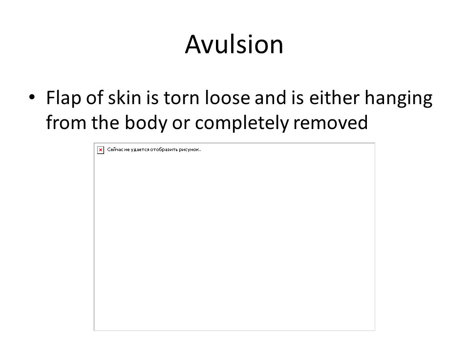 Avulsion Flap of skin is torn loose and is either hanging from the body or completely removed