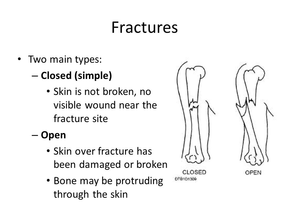 Fractures Two main types: – Closed (simple) Skin is not broken, no visible wound near the fracture site – Open Skin over fracture has been damaged or broken Bone may be protruding through the skin