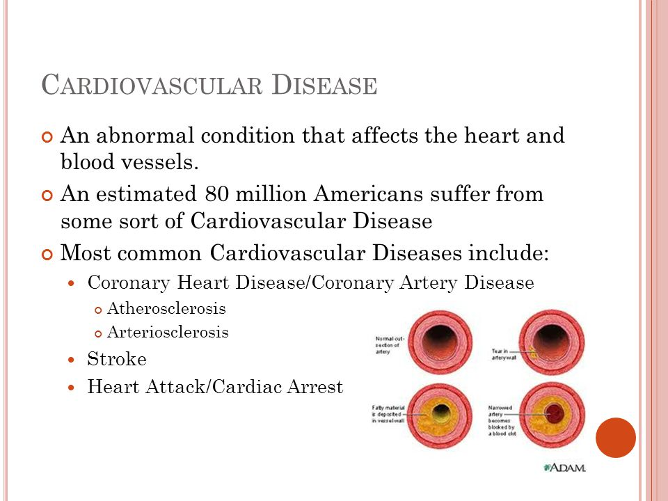 C ARDIOVASCULAR D ISEASE An abnormal condition that affects the heart and blood vessels. An estimated 80 million Americans suffer from some sort of Ca